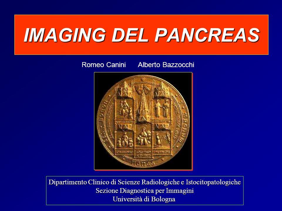 ghiandola pancreatica diffusamente aumentata di volume per fenomeni edematosi con soffusione del tessuto adiposo peripancreatico, moderata quota di versamento fluido peripancreatico Pancreatite Acuta Caso n°1