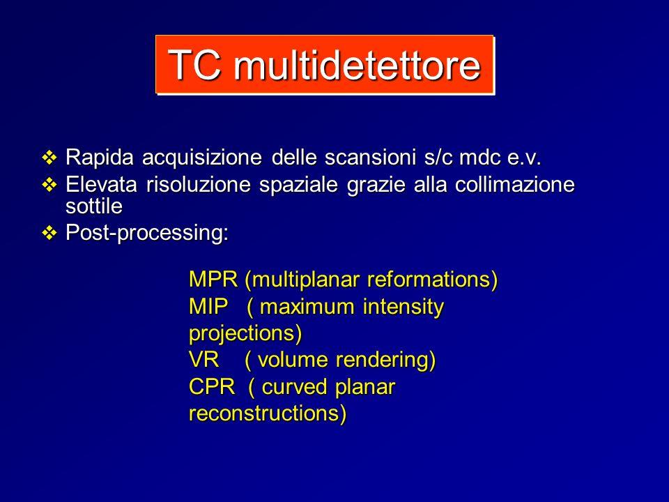 Rapida acquisizione delle scansioni s/c mdc e.v. Rapida acquisizione delle scansioni s/c mdc e.v. Elevata risoluzione spaziale grazie alla collimazion
