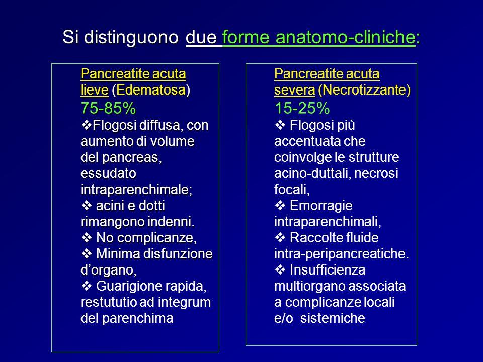 Si distinguono due forme anatomo-cliniche: Pancreatite acuta lieve (Edematosa) 75-85% Flogosi diffusa, con aumento di volume del pancreas, essudato in