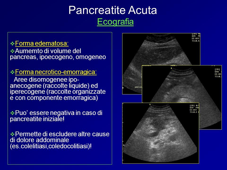 Forma edematosa: Aumemto di volume del pancreas, ipoecogeno, omogeneo Forma necrotico-emorragica: Aree disomogenee ipo- anecogene (raccolte liquide) e