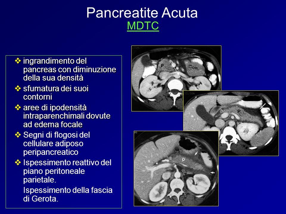 ingrandimento del pancreas con diminuzione della sua densità ingrandimento del pancreas con diminuzione della sua densità sfumatura dei suoi contorni