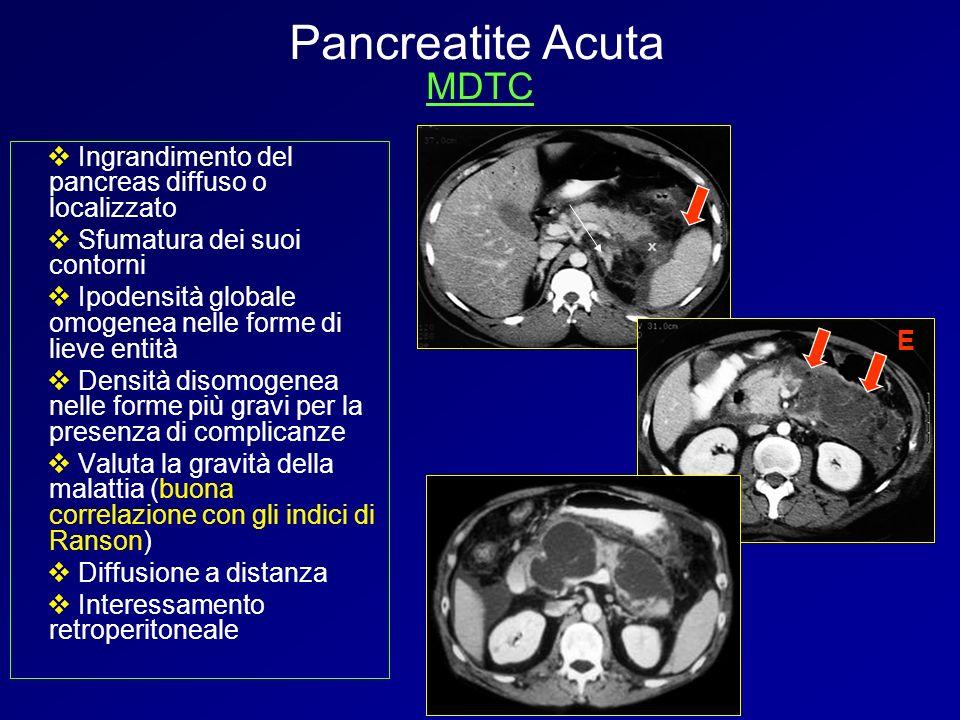 Ingrandimento del pancreas diffuso o localizzato Sfumatura dei suoi contorni Ipodensità globale omogenea nelle forme di lieve entità Densità disomogen
