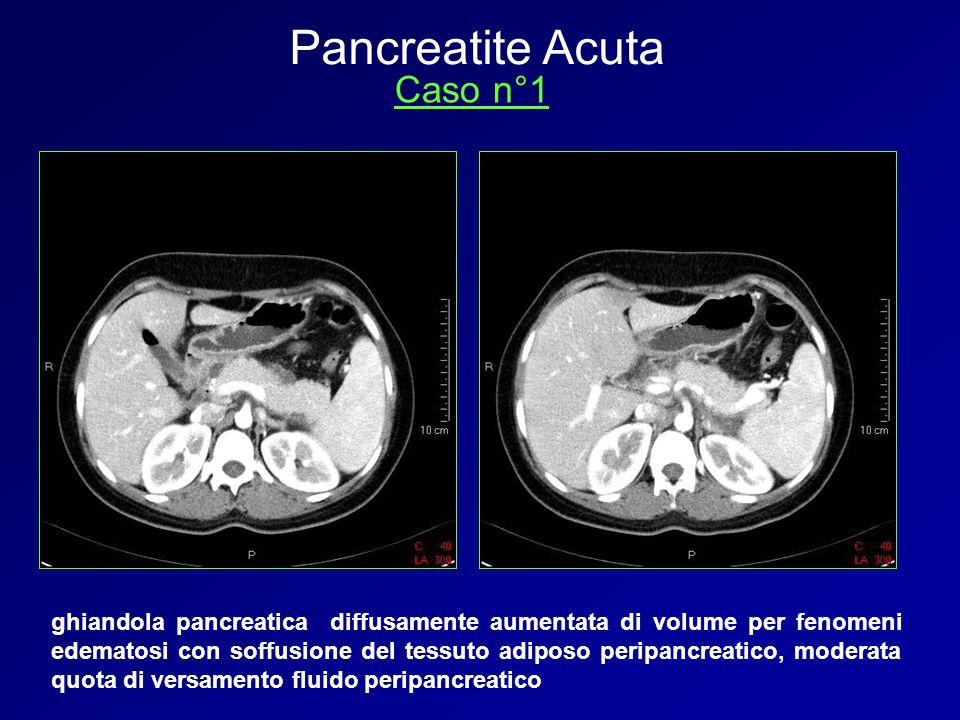 ghiandola pancreatica diffusamente aumentata di volume per fenomeni edematosi con soffusione del tessuto adiposo peripancreatico, moderata quota di ve