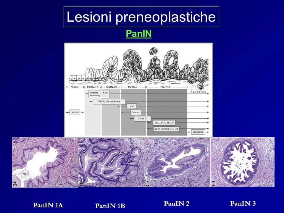 Lesioni preneoplastiche PanIN PanIN 1A PanIN 1B PanIN 2PanIN 3
