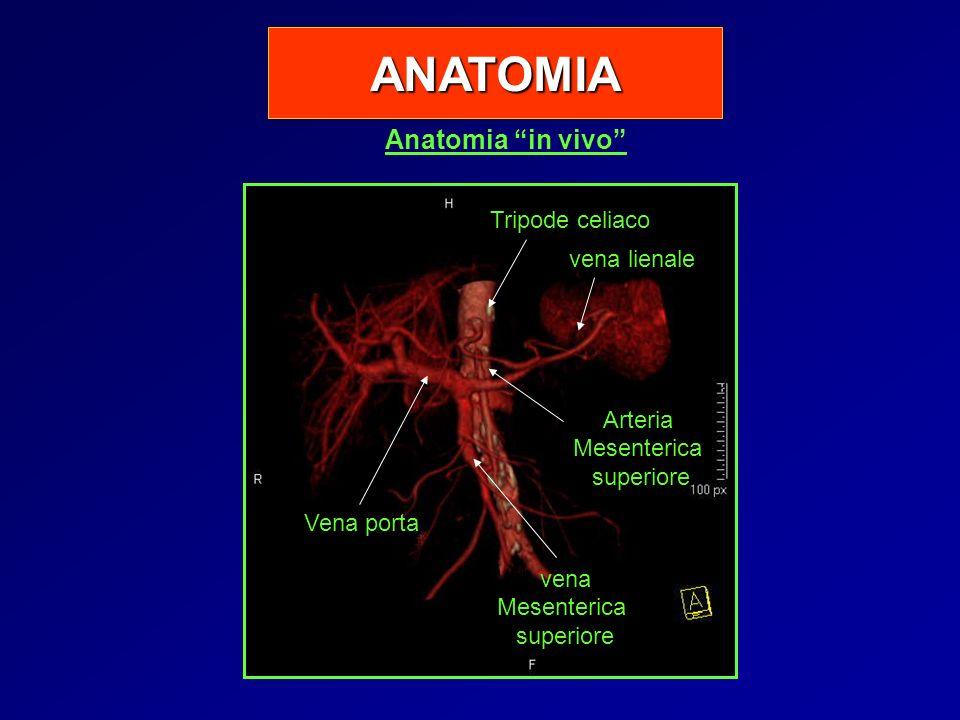Anatomia in vivo ANATOMIA Tripode celiaco ArteriaMesentericasuperiore Vena porta venaMesentericasuperiore vena lienale