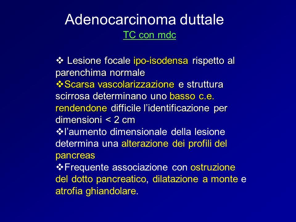 Adenocarcinoma duttale TC con mdc Lesione focale ipo-isodensa rispetto al parenchima normale Lesione focale ipo-isodensa rispetto al parenchima normal