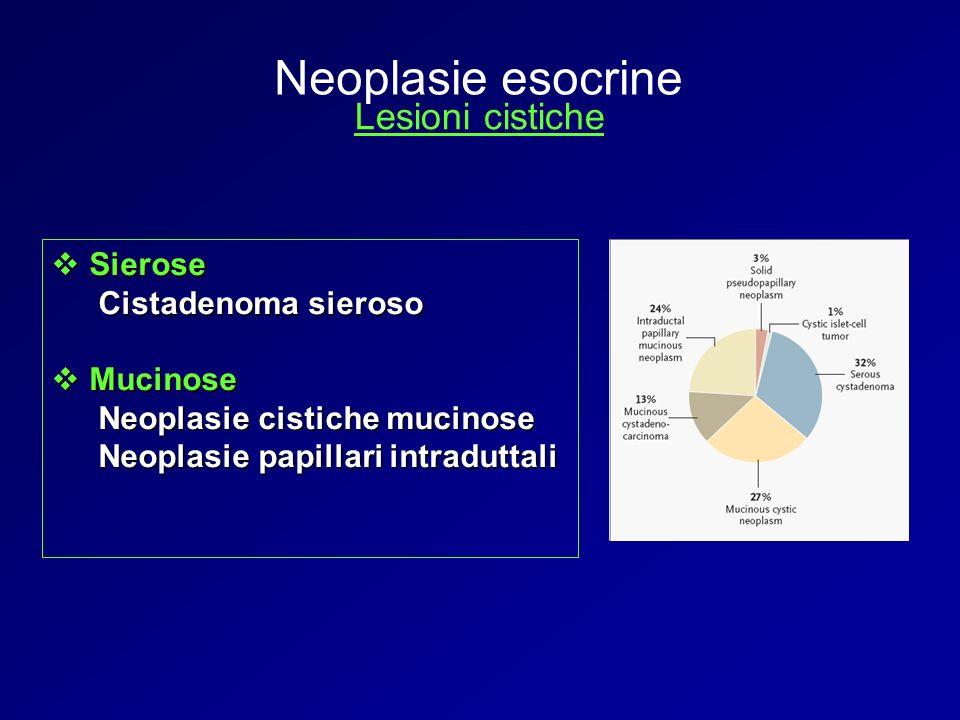 Sierose Sierose Cistadenoma sieroso Mucinose Mucinose Neoplasie cistiche mucinose Neoplasie papillari intraduttali Neoplasie esocrine Lesioni cistiche