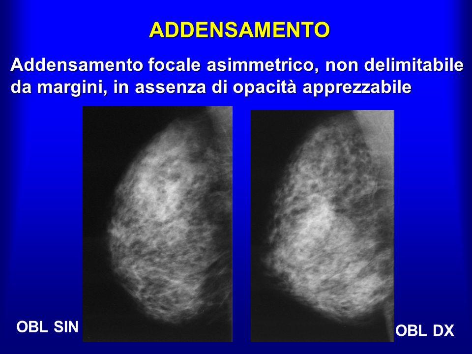ADDENSAMENTO OBL DX OBL SIN Addensamento focale asimmetrico, non delimitabile da margini, in assenza di opacità apprezzabile