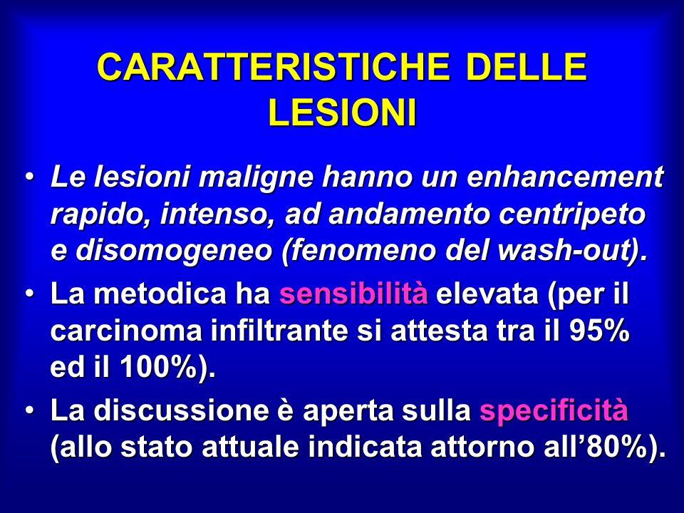 CARATTERISTICHE DELLE LESIONI Le lesioni maligne hanno un enhancement rapido, intenso, ad andamento centripeto e disomogeneo (fenomeno del wash-out).Le lesioni maligne hanno un enhancement rapido, intenso, ad andamento centripeto e disomogeneo (fenomeno del wash-out).