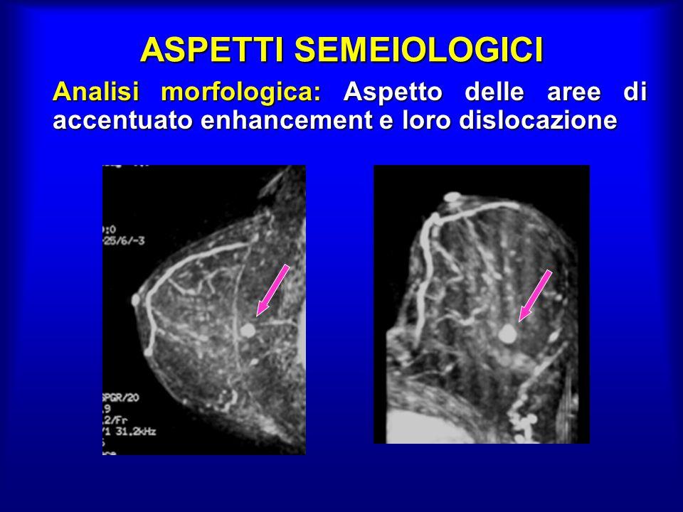 ASPETTI SEMEIOLOGICI Analisi morfologica: Aspetto delle aree di accentuato enhancement e loro dislocazione