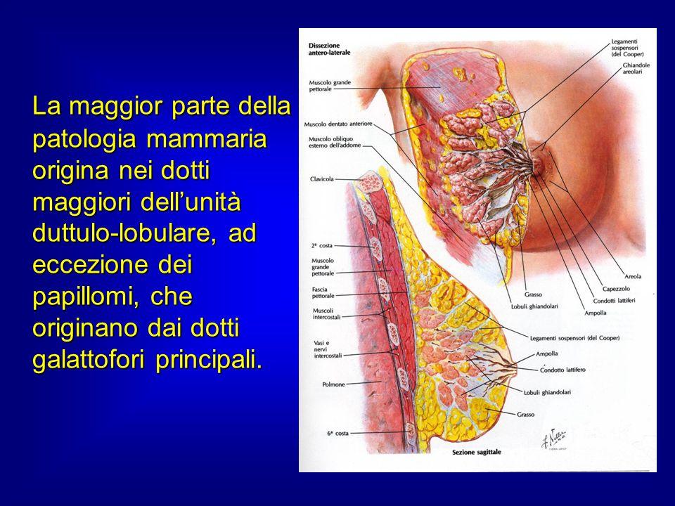 La maggior parte della patologia mammaria origina nei dotti maggiori dellunità duttulo-lobulare, ad eccezione dei papillomi, che originano dai dotti galattofori principali.