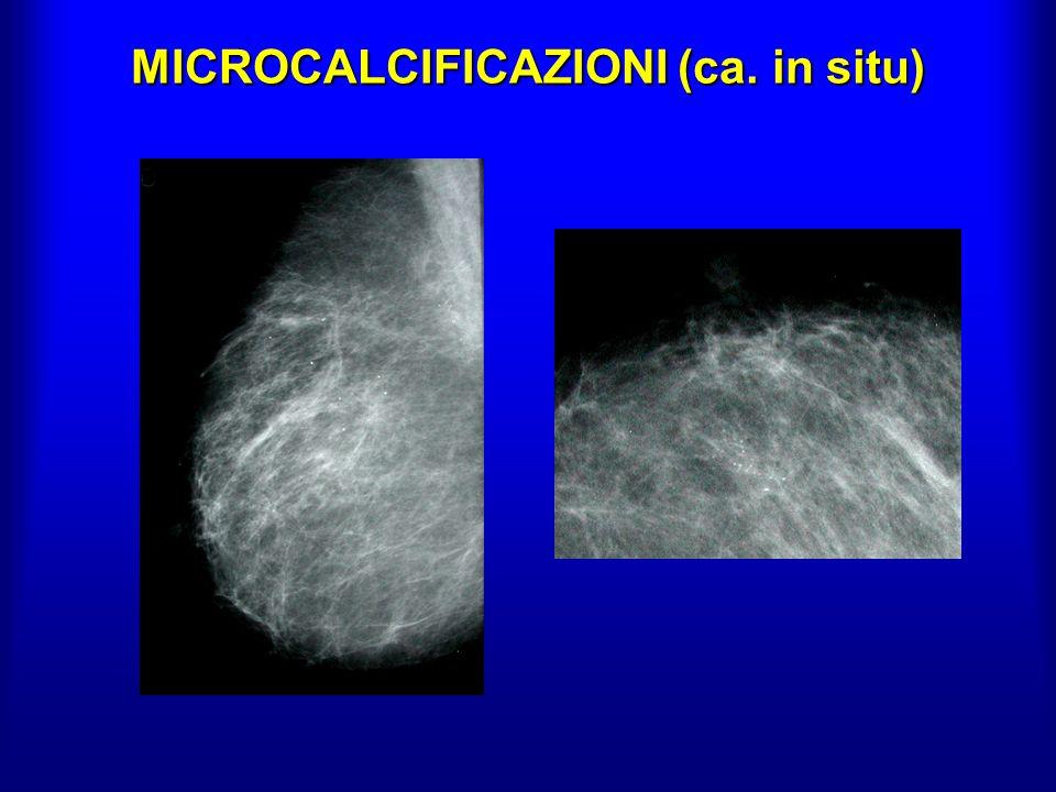 RISONANZA MAGNETICA Lelevato contrasto dei tessuti molli e la tecnica di enhancement consentono lo studio di lesioni sospette alla mammografia e lindividuazione di lesioni eventualmente associate (alta sensibilità: 98% per forme invasive; 80% per ca.