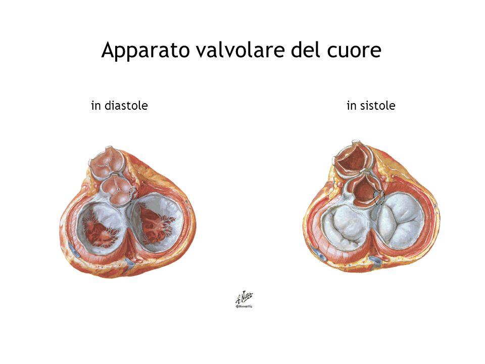Stenòsi mitralica Anatomia: –2 lembi valvolari, corde tendinee, anulus –Superficie: 4-6 cm 2 ( limite critico:1-1,5 cm 2) Eziologia: –malattia reumatica, calcificazione (anziani) malattie autoimmuni Fisiopatologia: –ostacolo al passaggio di sangue attraverso la valvola AV e, quindi, al riempimento ventricolare sn durante la diastole – pressione atrio sn, gradiente pressorio AV riempimento ventricolare mantenuto, portata cardiaca mantenuta (a riposo) – pressione atrio sn si trasmette in senso retrogrado alle vene e capillari polmonari ipertensione polmonare cronica –congestione polmonare cronica sindrome funzionale ventilatoria restrittiva Conseguenze cliniche: –dispnea da sforzo, fibrillazione atriale, emoftoe, edema polmonare acuto –Ipotensione, astenia e ridotta tolleranza allo sforzo, scompenso cardiaco congestizio Esame obiettivo: –rinforzo del I tono –schiocco di apertura della mitrale –soffio o rullio diastolico –reperti ausculatatori della ipertensione arteriosa polmonare: accentuazione componente polmonare del II tono, soffio sistolico e soffio diastolico della valvola polmonare (o soffio di Graham Steel)