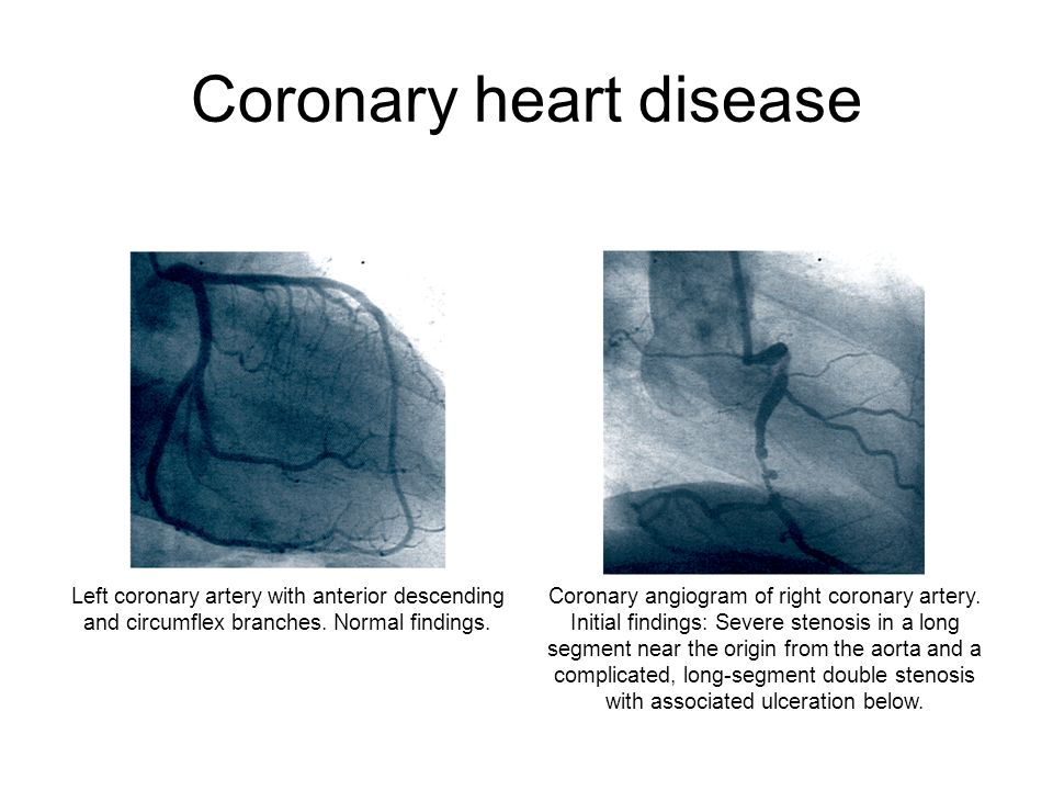 Coronary heart disease Coronary angiogram of right coronary artery. Initial findings: Severe stenosis in a long segment near the origin from the aorta