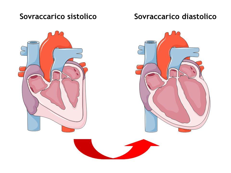 Valvulopatie: caratteristiche generali 4.Disturbi funzionali: –aumento delle pressioni a monte della valvola/e interessate con trasmissione retrograda al distretto venoso sistemico o polmonare –caduta della gittata cardiaca (= gittata sistolica x FC) o insufficiente adeguamento di questultima alle richieste dellorgansimo
