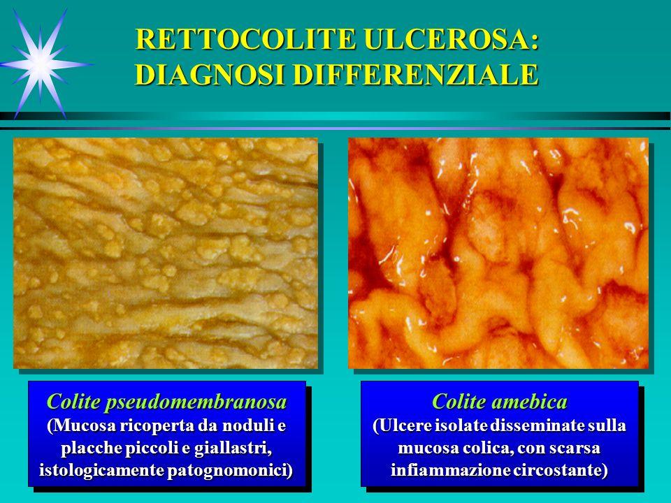 Colite pseudomembranosa (Mucosa ricoperta da noduli e placche piccoli e giallastri, istologicamente patognomonici) Colite pseudomembranosa (Mucosa ric