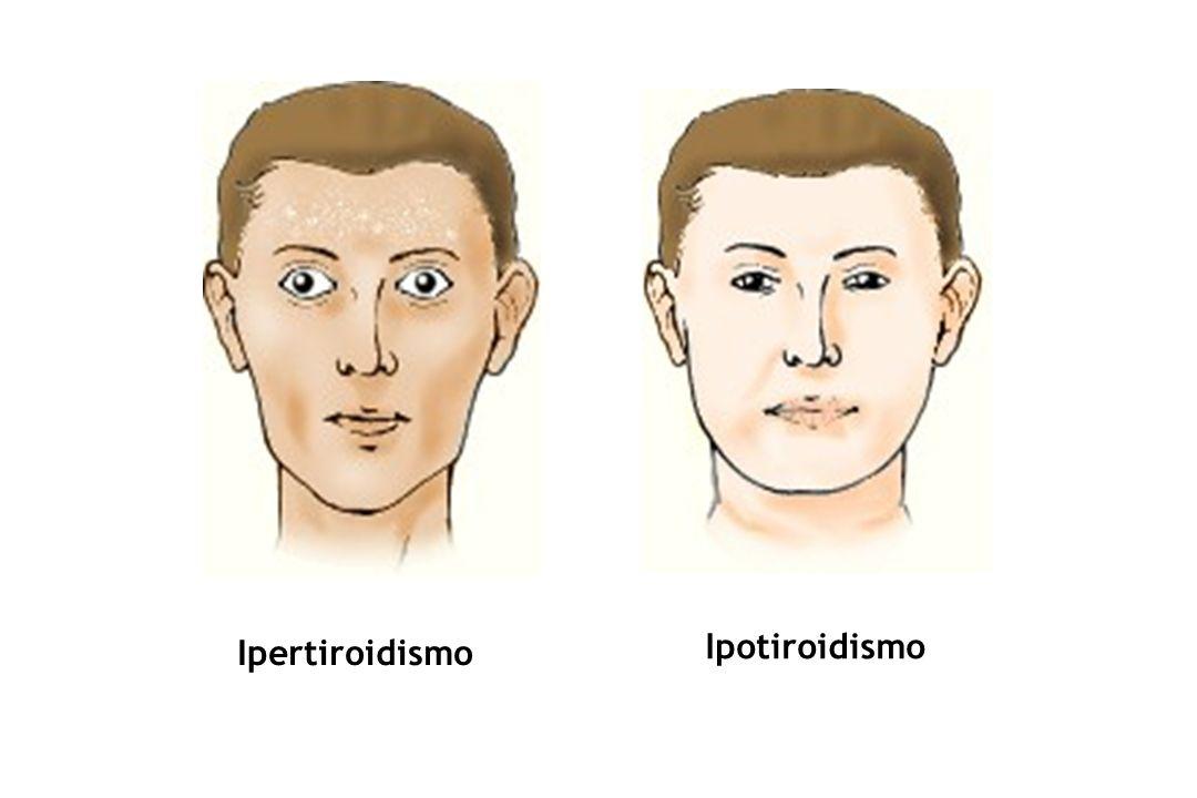 Ipertiroidismo Ipotiroidismo