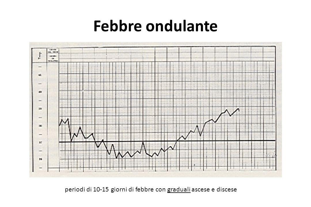 Febbre ondulante periodi di 10-15 giorni di febbre con graduali ascese e discese