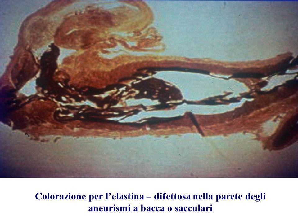 Colorazione per lelastina – difettosa nella parete degli aneurismi a bacca o sacculari