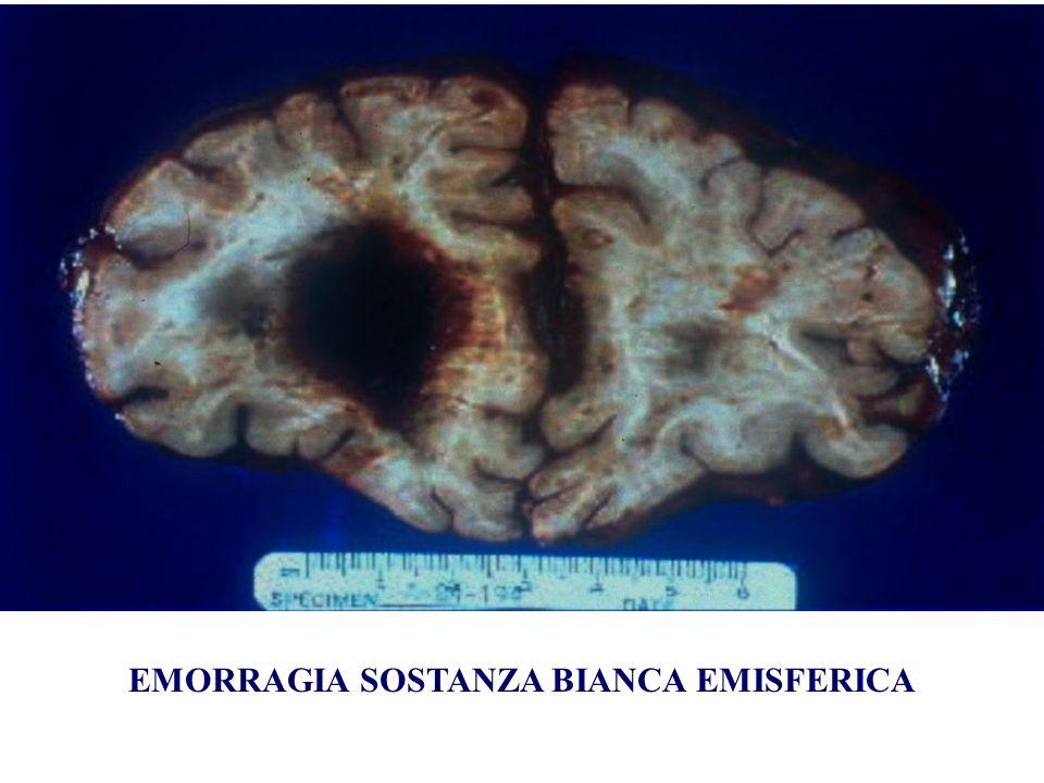 EMORRAGIA SOSTANZA BIANCA EMISFERICA