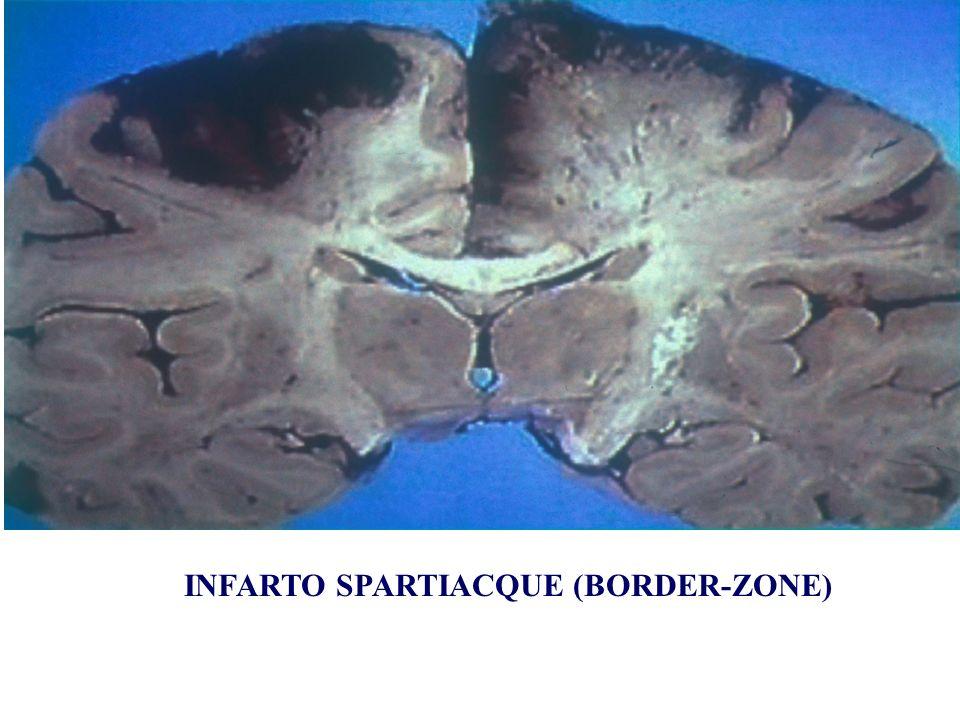 INFARTO SPARTIACQUE (BORDER-ZONE)