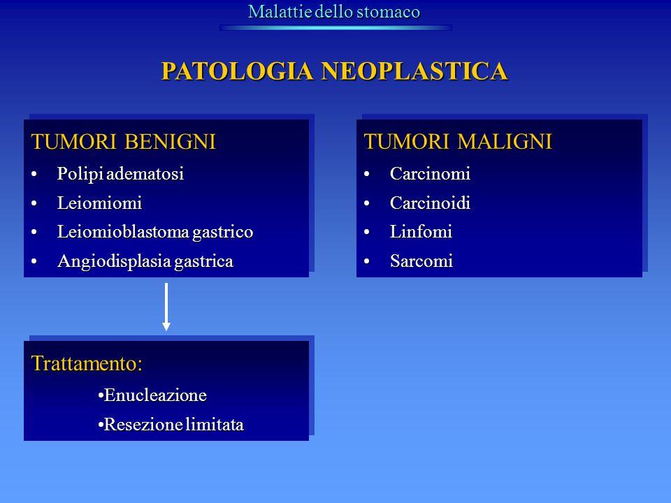 TUMORI MALIGNI CarcinomiCarcinomi CarcinoidiCarcinoidi LinfomiLinfomi SarcomiSarcomi TUMORI MALIGNI CarcinomiCarcinomi CarcinoidiCarcinoidi LinfomiLin