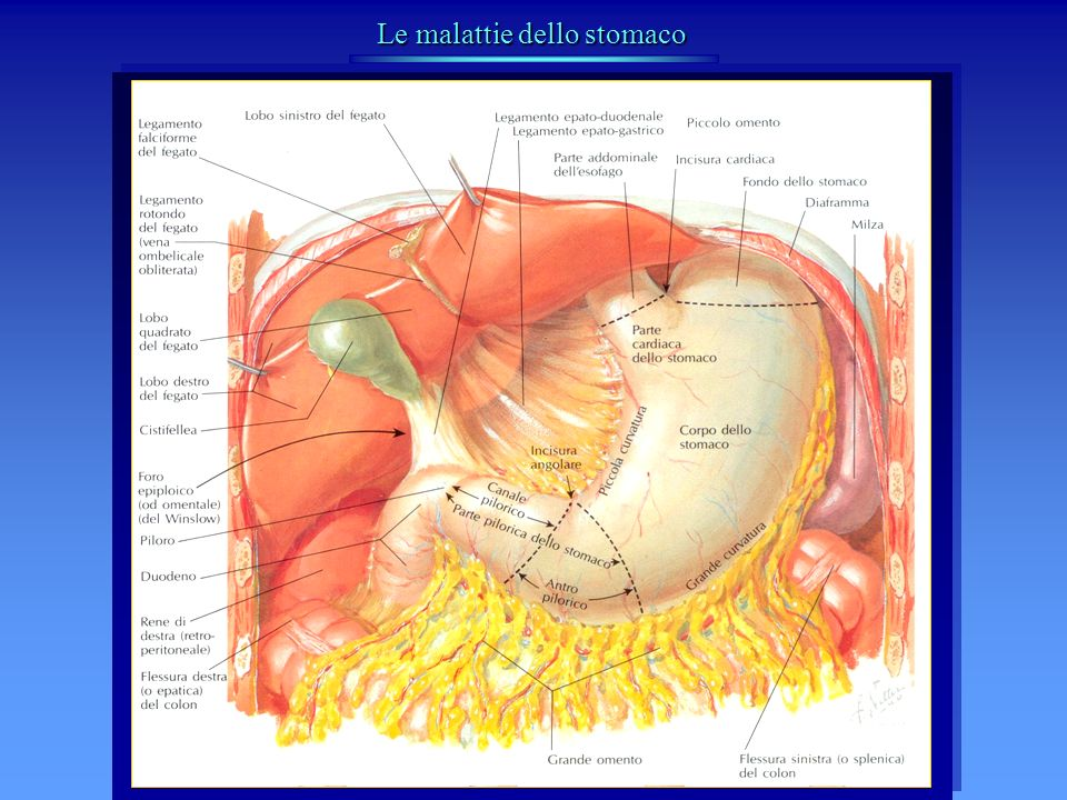 ULCERA PEPTICA Terapia delle complicanze Patologie non neoplastiche dello stomaco EMORRAGIA SNG e terapia medica Emostasi endoscopica (termocoagulazione, elettrocoagulazione, fotocoagulazione laser, iniezione sostanze sclerosanti) Sutura emostatica dellulcera + vagotomia Vagotomia + resezione gastrica EMORRAGIA SNG e terapia medica Emostasi endoscopica (termocoagulazione, elettrocoagulazione, fotocoagulazione laser, iniezione sostanze sclerosanti) Sutura emostatica dellulcera + vagotomia Vagotomia + resezione gastrica