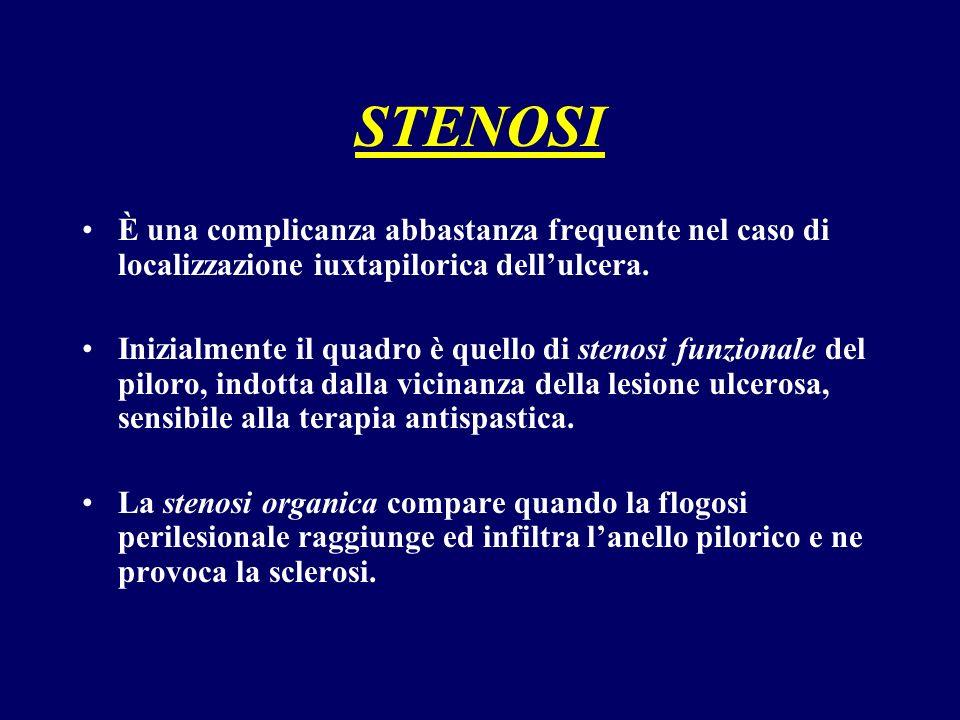 STENOSI È una complicanza abbastanza frequente nel caso di localizzazione iuxtapilorica dellulcera. Inizialmente il quadro è quello di stenosi funzion
