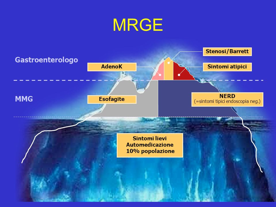 MRGE Sintomi lievi Automedicazione 10% popolazione MMG Gastroenterologo Stenosi/Barrett Sintomi atipiciAdenoK Esofagite NERD (=sintomi tipici endoscop