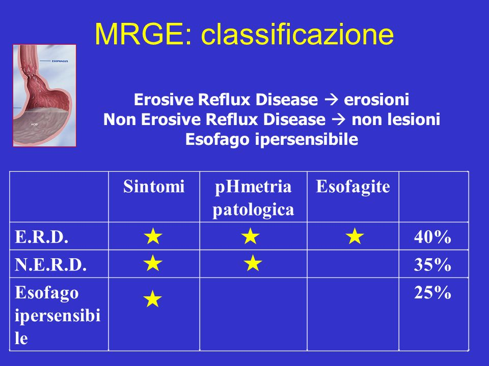 MRGE: classificazione SintomipHmetria patologica Esofagite E.R.D.40% N.E.R.D.35% Esofago ipersensibi le 25% Erosive Reflux Disease erosioni Non Erosiv