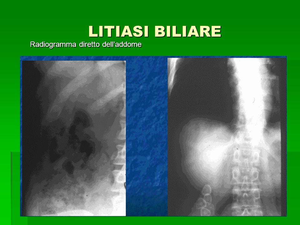 LITIASI BILIARE LITIASI BILIARE Radiogramma diretto delladdome