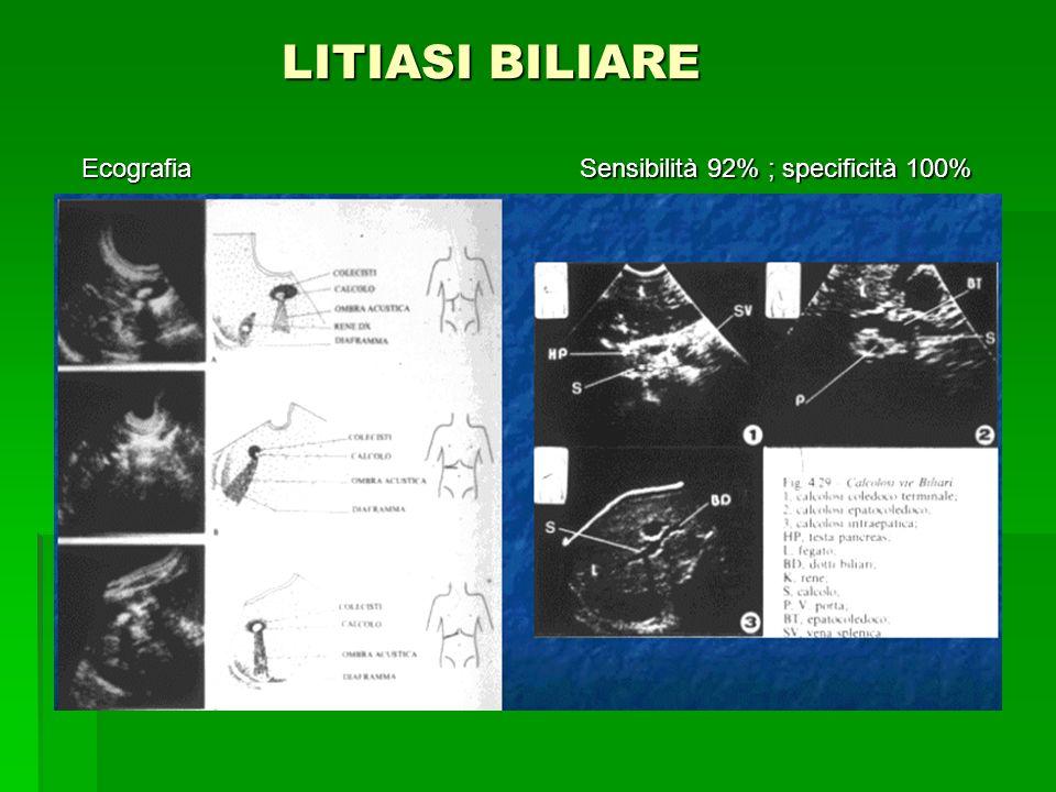 LITIASI BILIARE LITIASI BILIARE Sensibilità 92% ; specificità 100% Ecografia