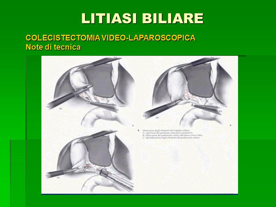 LITIASI BILIARE LITIASI BILIARE COLECISTECTOMIA VIDEO-LAPAROSCOPICA Note di tecnica