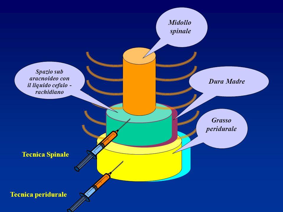 Grasso peridurale Midollo spinale Tecnica peridurale Tecnica Spinale Dura Madre Spazio sub aracnoideo con il liquido cefalo - rachidiano