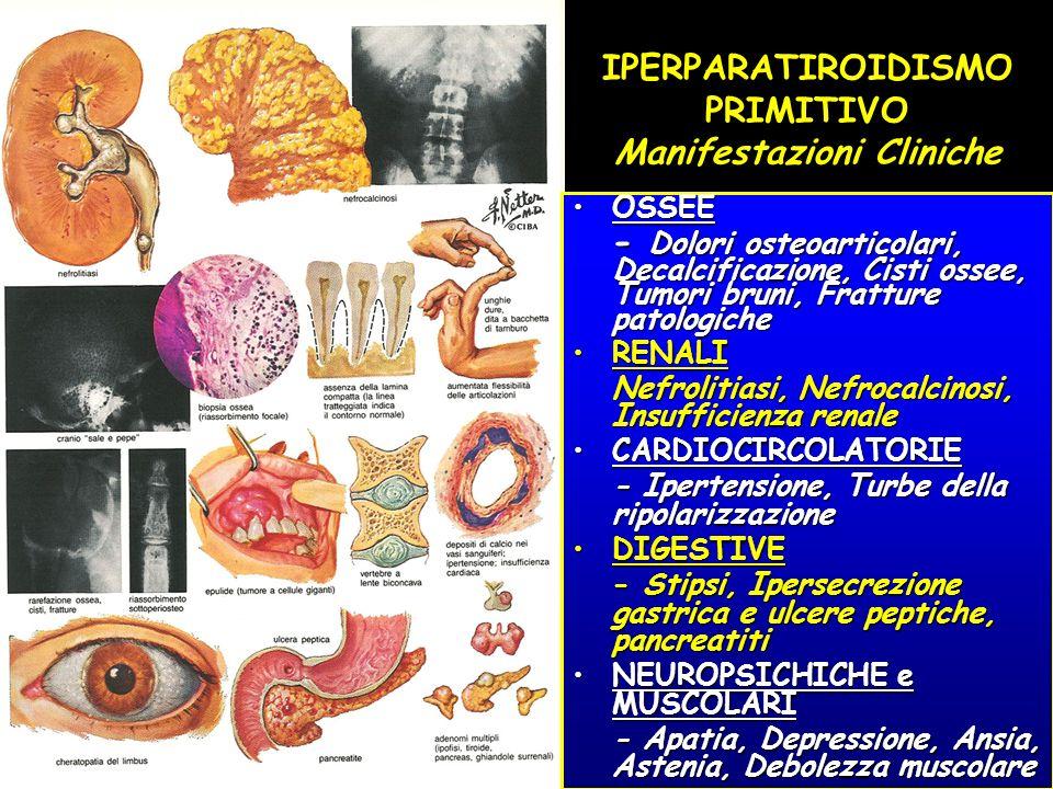 IPERPARATIROIDISMO PRIMITIVO Manifestazioni Cliniche OSSEEOSSEE - Dolori osteoarticolari, Decalcificazione, Cisti ossee, Tumori bruni, Fratture patolo