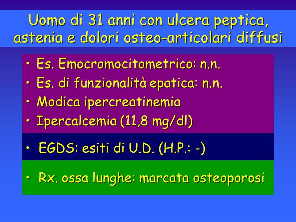 IPERPARATIROIDISMO PRIMITIVO Manifestazioni Cliniche OSSEEOSSEE - Dolori osteoarticolari, Decalcificazione, Cisti ossee, Tumori bruni, Fratture patologiche RENALIRENALI Nefrolitiasi, Nefrocalcinosi, Insufficienza renale CARDIOCIRCOLATORIECARDIOCIRCOLATORIE - Ipertensione, Turbe della ripolarizzazione DIGESTIVEDIGESTIVE - Stipsi, Ipersecrezione gastrica e ulcere peptiche, pancreatiti NEUROPSICHICHE e MUSCOLARINEUROPSICHICHE e MUSCOLARI - Apatia, Depressione, Ansia, Astenia, Debolezza muscolare