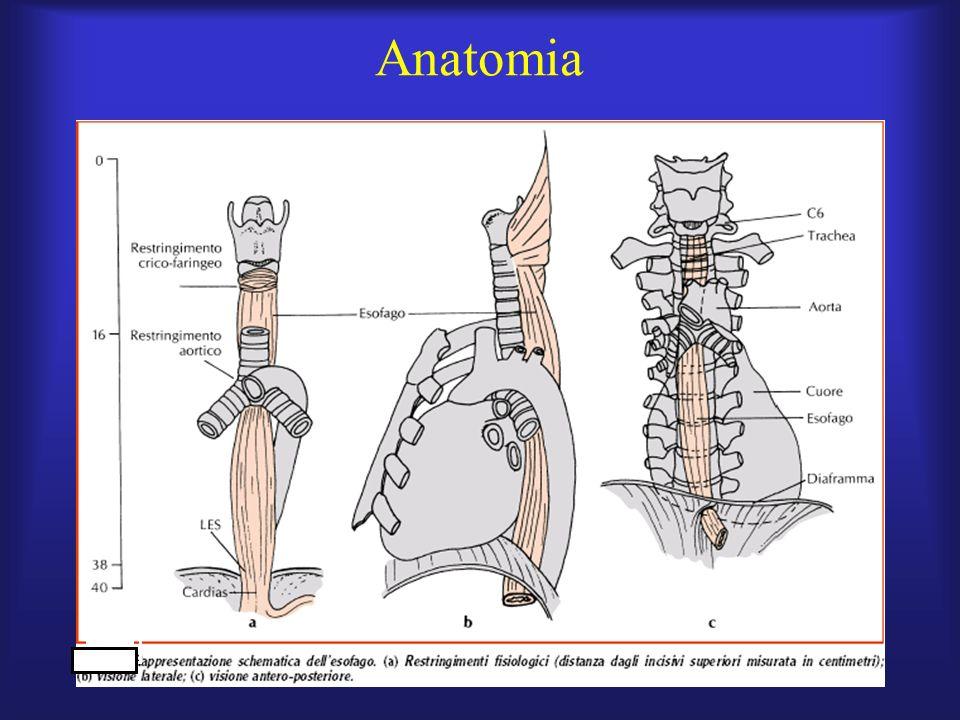 Sintomatologia Allesordio della malattia, la disfagia è accompagnata da odinofagia e da episodi di intenso dolore toracico ad insorgenza spontanea che possono simulare langina pectoris.