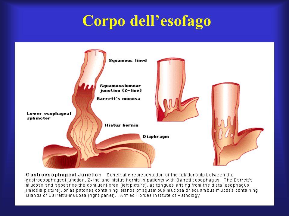La terapia della stenosi cicatriziale da reflusso consiste nella dilatazione endoscopica del lume esofageo (con associato lintervento di plastica antireflusso) oppure, in alternativa, si esegue lesofagoplastica transluminale con catetere a palloncino.