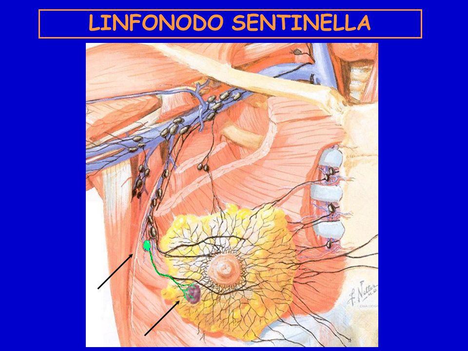 LINFONODO SENTINELLA