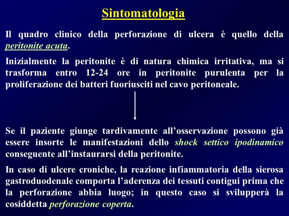 Sintomatologia Il quadro clinico della perforazione di ulcera è quello della peritonite acuta. Inizialmente la peritonite è di natura chimica irritati