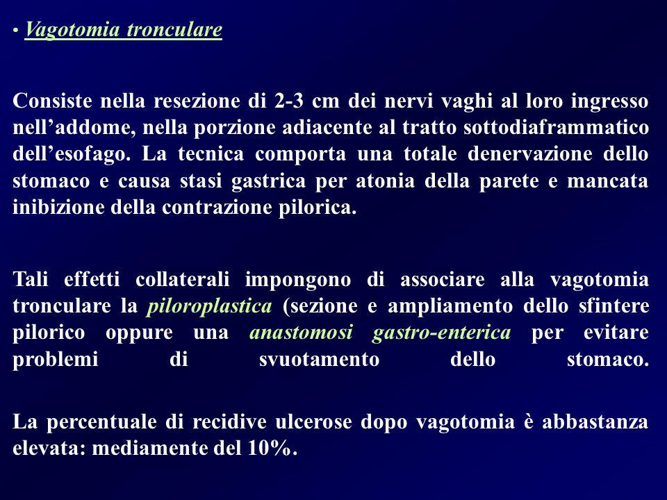 Vagotomia tronculare Consiste nella resezione di 2-3 cm dei nervi vaghi al loro ingresso nelladdome, nella porzione adiacente al tratto sottodiaframma