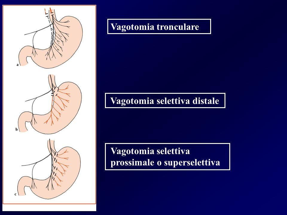 Vagotomia tronculare Vagotomia selettiva distale Vagotomia selettiva prossimale o superselettiva