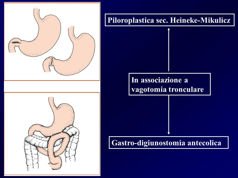 Piloroplastica sec. Heineke-Mikulicz Gastro-digiunostomia antecolica In associazione a vagotomia tronculare