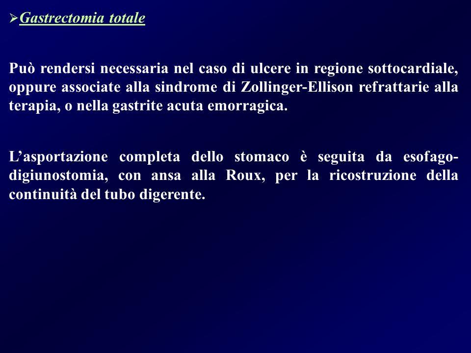 Gastrectomia totale Può rendersi necessaria nel caso di ulcere in regione sottocardiale, oppure associate alla sindrome di Zollinger-Ellison refrattar