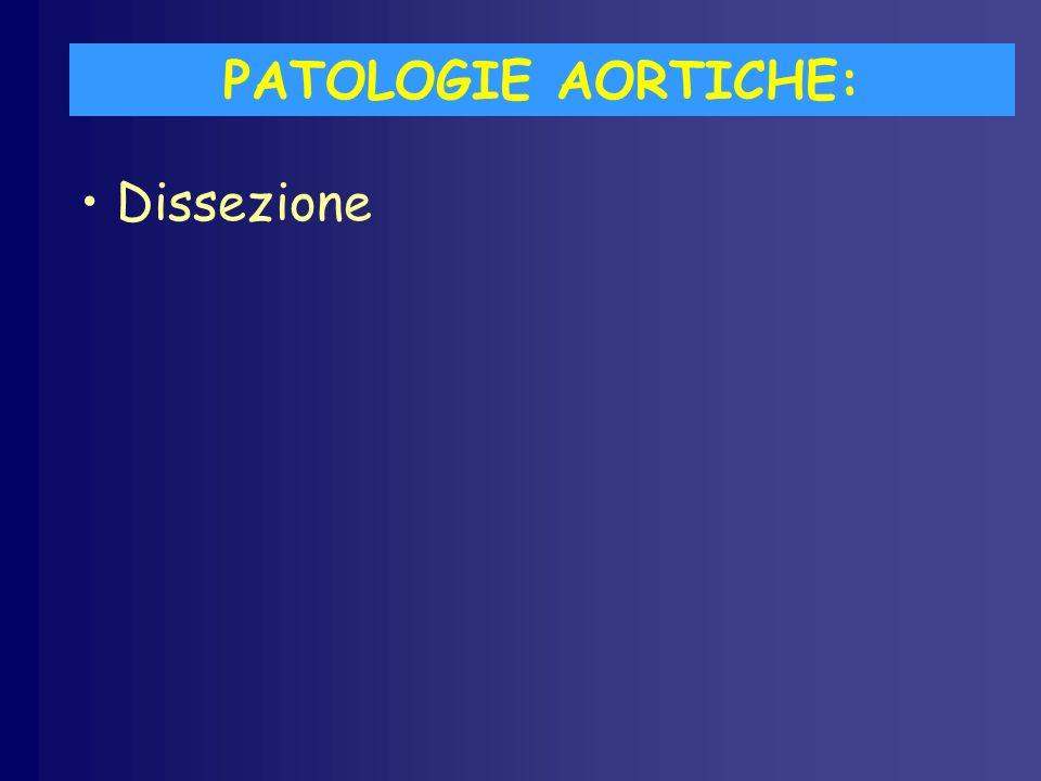 PATOLOGIE AORTICHE: Dissezione