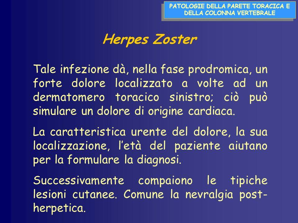 PATOLOGIE DELLA PARETE TORACICA E DELLA COLONNA VERTEBRALE Herpes Zoster Tale infezione dà, nella fase prodromica, un forte dolore localizzato a volte