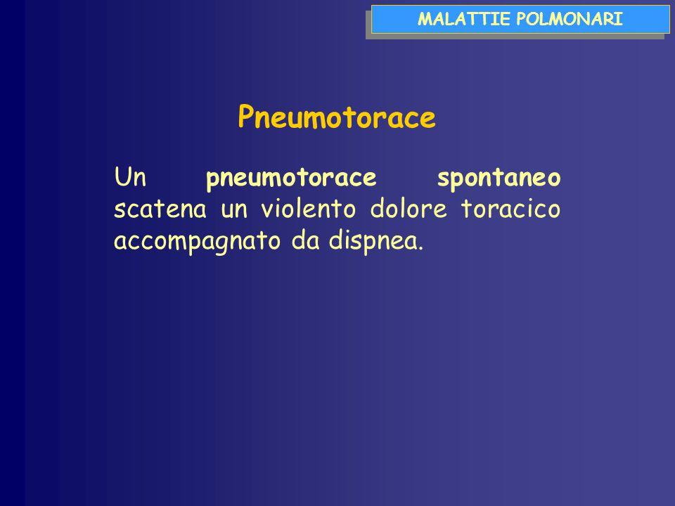 MALATTIE POLMONARI Pneumotorace Un pneumotorace spontaneo scatena un violento dolore toracico accompagnato da dispnea.