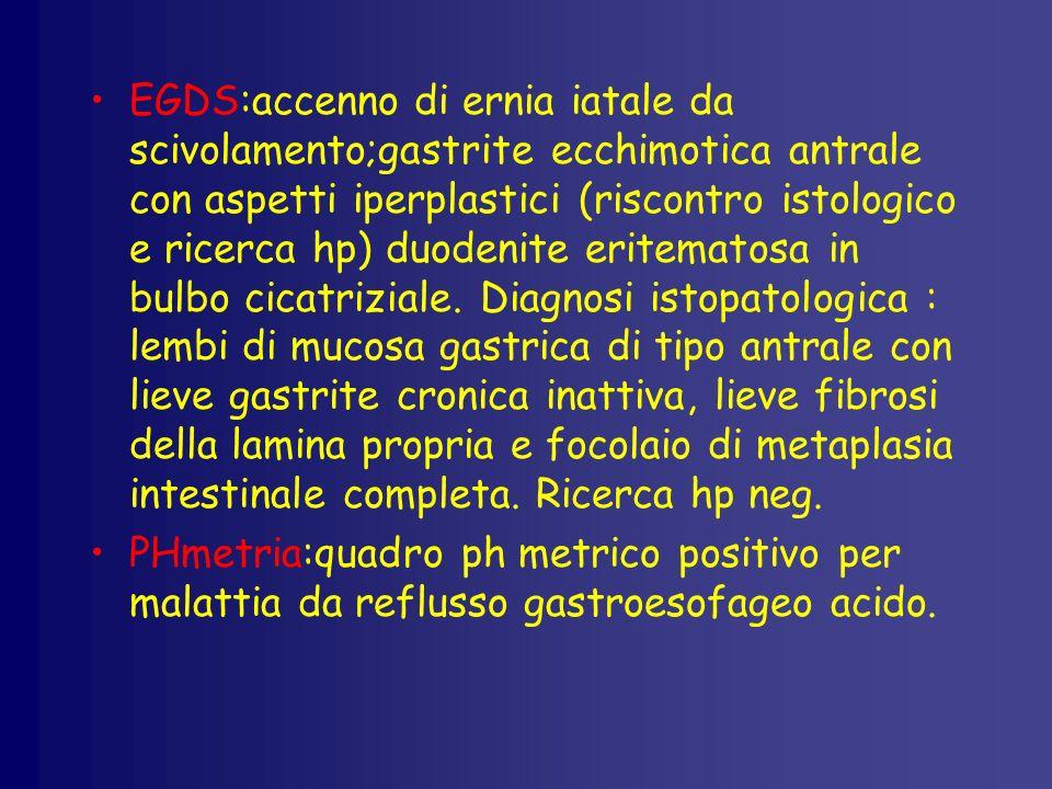 EGDS:accenno di ernia iatale da scivolamento;gastrite ecchimotica antrale con aspetti iperplastici (riscontro istologico e ricerca hp) duodenite eritematosa in bulbo cicatriziale.