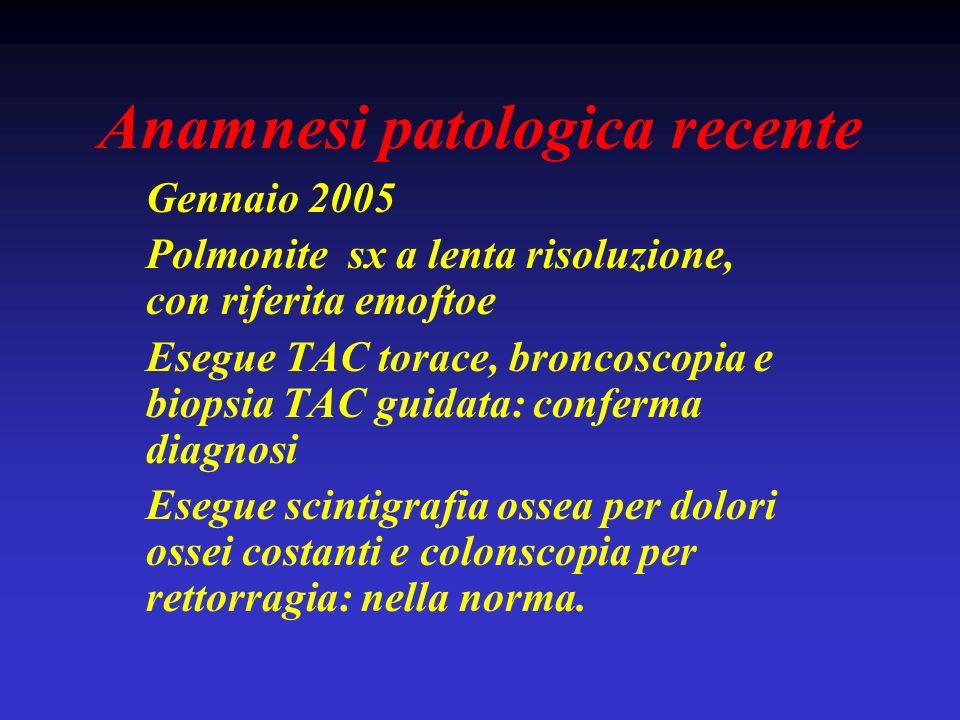 Anamnesi patologica recente Gennaio 2005 Polmonite sx a lenta risoluzione, con riferita emoftoe Esegue TAC torace, broncoscopia e biopsia TAC guidata: