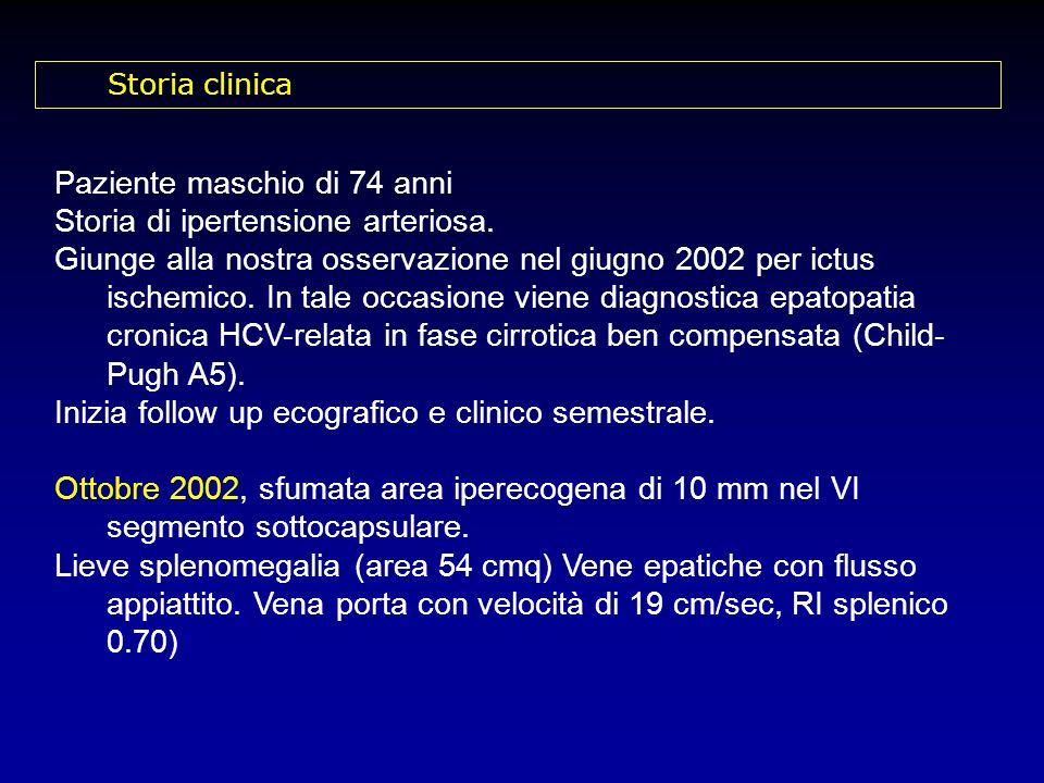 Paziente maschio di 74 anni Storia di ipertensione arteriosa. Giunge alla nostra osservazione nel giugno 2002 per ictus ischemico. In tale occasione v